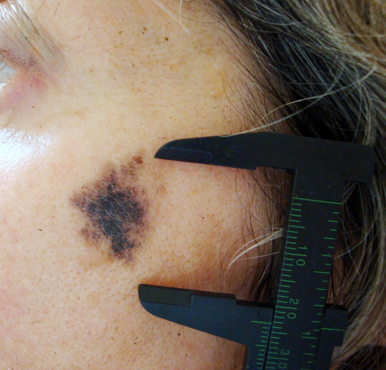 Birthmark growth may be a sign of melanoma
