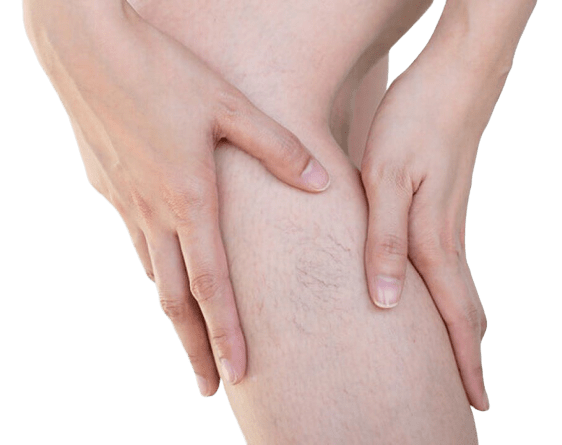 Spider and Varicose Veins: treatment methods