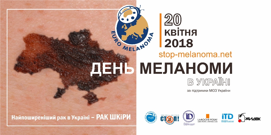 Melanoma Day 2018 – come for a free examination of moles in your city April 20!