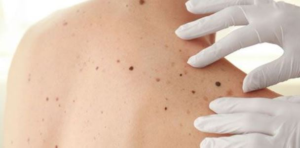 Where in Kyiv you can remove a mole and everything you need to know about melanoma